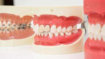 虫歯は削らなくても治る!?