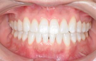 一般歯科の症例