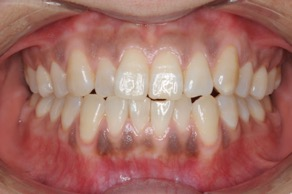 矯正歯科の症例